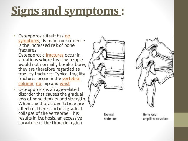 osteoporosis and its relationship to oral bone loss