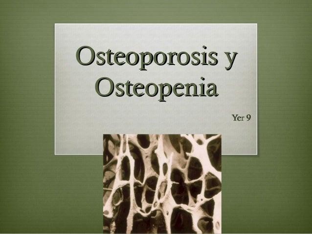 Osteoporosis yOsteoporosis y OsteopeniaOsteopenia Yer 9Yer 9