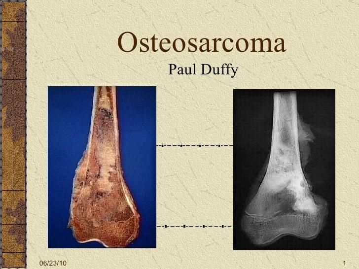Osteosarcoma Paul Duffy