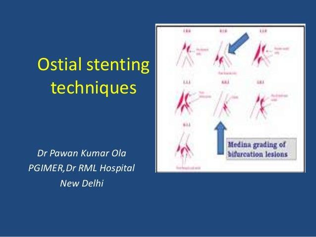 Ostial stenting techniques Dr Pawan Kumar Ola PGIMER,Dr RML Hospital New Delhi