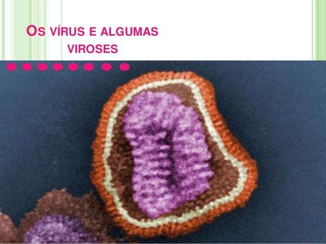 OS VÍRUS E ALGUMAS VIROSES