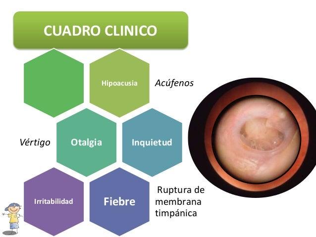 De la várice varicosa del intestino