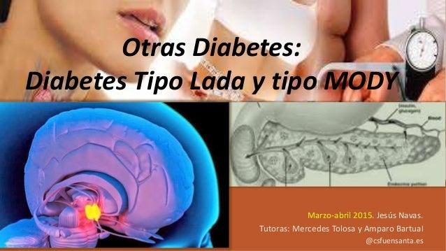 MEF Endocrino. Marzo-abril 2015. Jesús Navas. Tutoras: Mercedes Tolosa y Amparo Bartual @csfuensanta.es Otras Diabetes: Di...