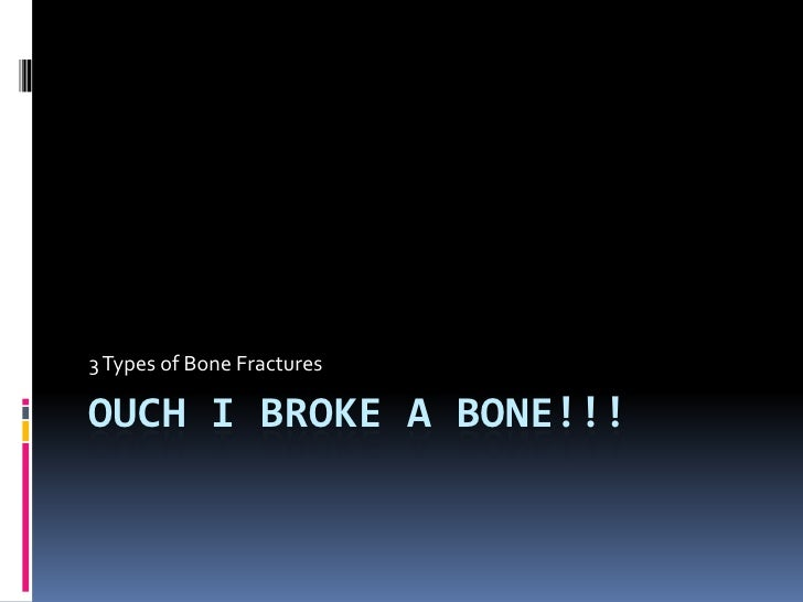 Ouch I Broke a Bone!!!By: Marguerite Smith<br />3 Types of Bone Fractures<br />