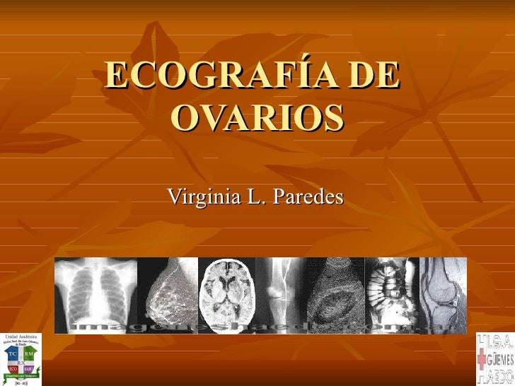 ECOGRAFÍA DE  OVARIOS Virginia L. Paredes