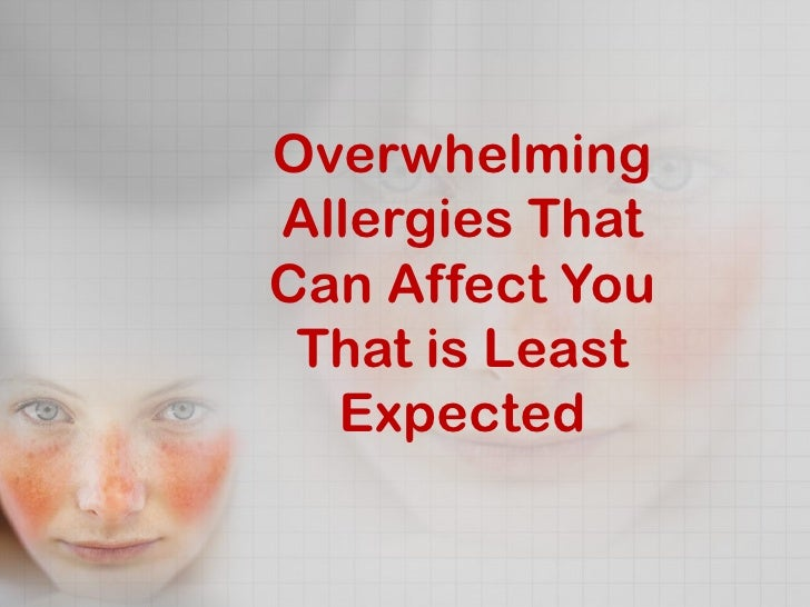 Overwhelming allergies that can affect you that is least expected fin
