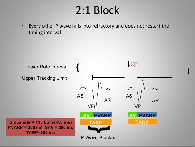 Wiring Diagram For Slide Gate besides Slide Gate Wiring Diagram as well Wiring Diagram For Slide Gate further Wiring Diagram For Slide Gate additionally 4 Lead Unipolar Wiring Diagram. on pacemakers ppt1