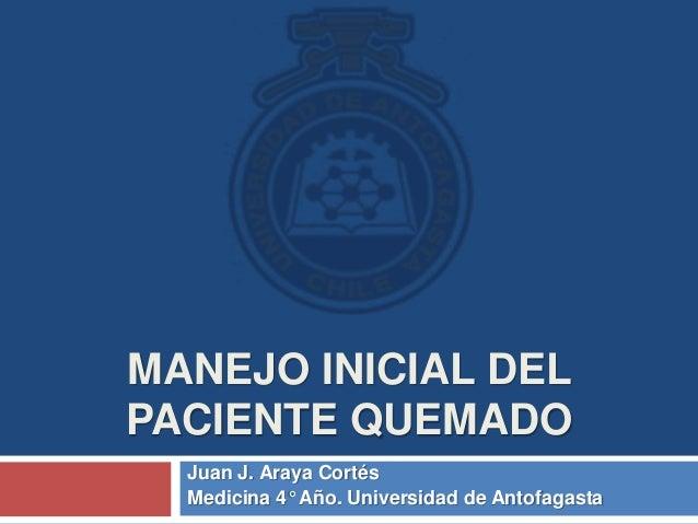 MANEJO INICIAL DEL PACIENTE QUEMADO Juan J. Araya Cortés Medicina 4° Año. Universidad de Antofagasta