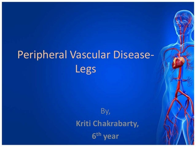Peripheral Vascular Disease-            Legs                   By,           Kriti Chakrabarty,                6th year