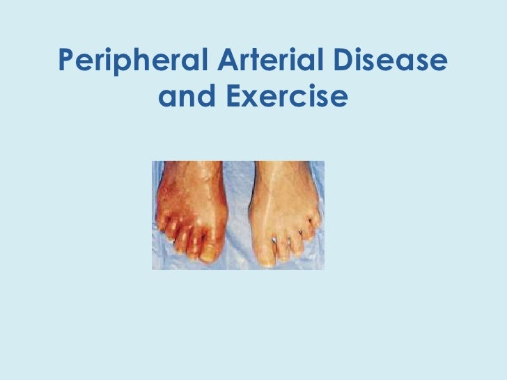 Peripheral Arterial Disease and Exercise<br />