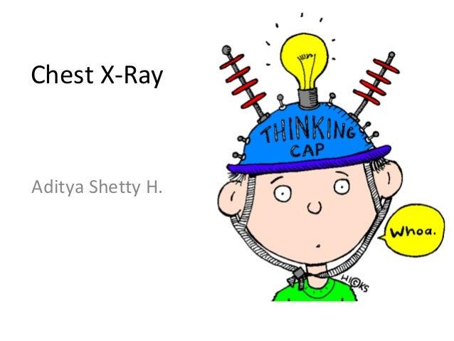 Chest X-RayAditya Shetty H.