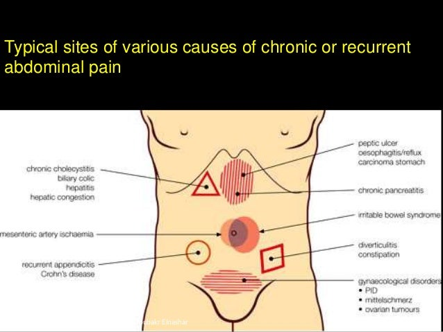 how to get rid of severe abdominal pain