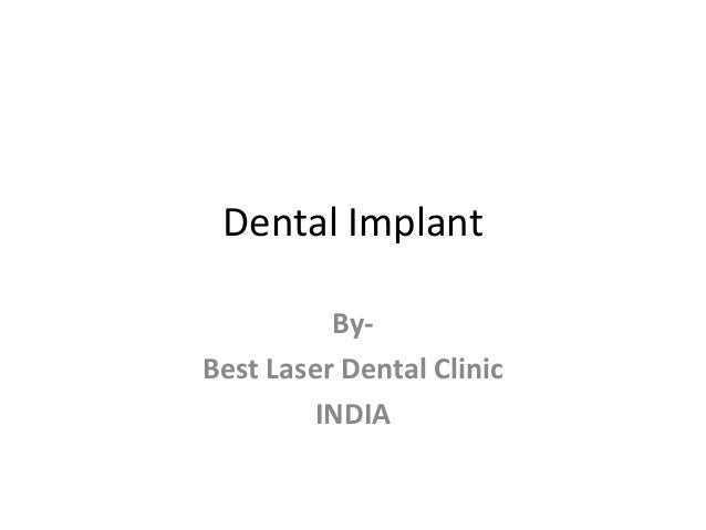 Painless dental implants in india