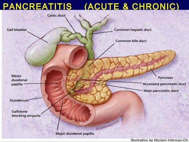 Pancreatitis (acute and chronic )