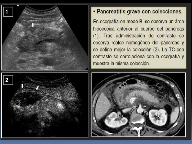 La hernia de la columna vertebral al recién nacido el tratamiento