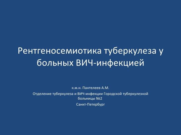 Panteleev rs tb-hiv