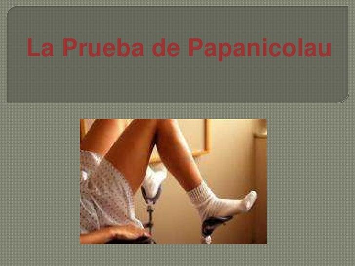 La Prueba de Papanicolau<br />