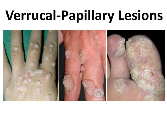 Verrucal-Papillary Lesions
