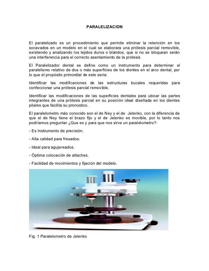 PARALELIZACION   El paralelizado es un procedimiento que permite eliminar la retención en los socavados en un modelo en el...