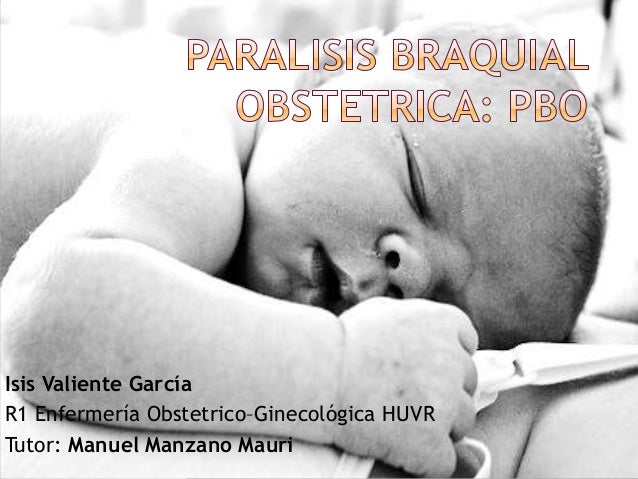 Paralisis braquial obstetrica