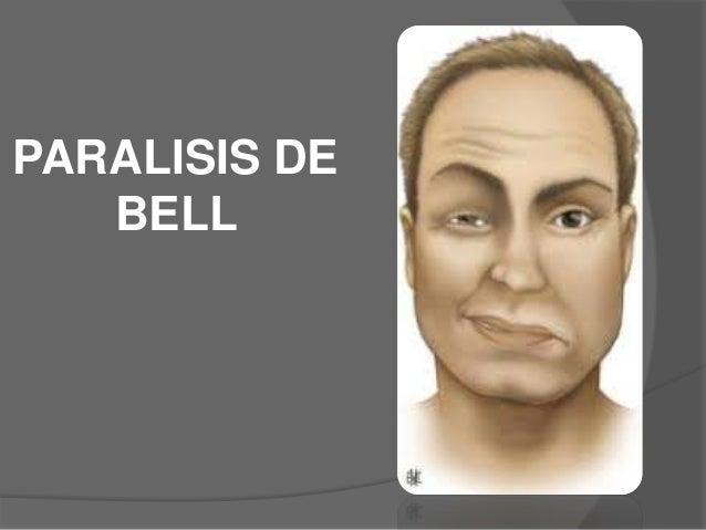Paralisis de bell o horner y lesion de plexo braquial
