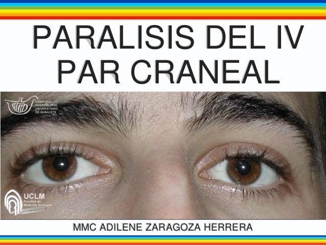 PARALISIS DEL IV PAR CRANEAL