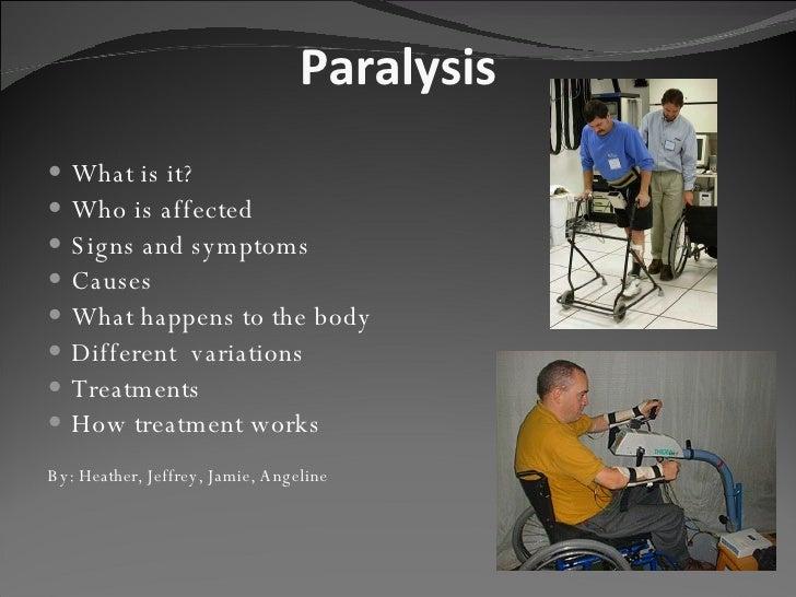 Paralysis <ul><li>What is it? </li></ul><ul><li>Who is affected </li></ul><ul><li>Signs and symptoms </li></ul><ul><li>Cau...