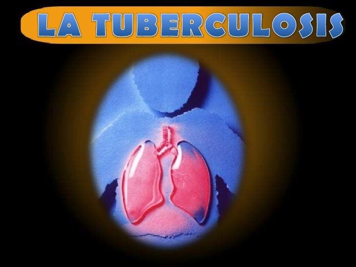 Tuberculosis nivel medio