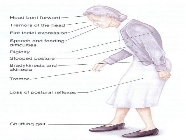 15 Symptoms of Parkinson's Disease