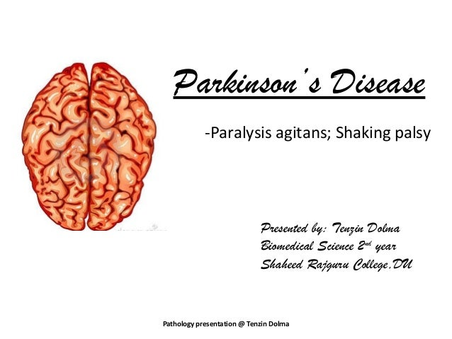 Parkinson's Disease            -Paralysis agitans; Shaking palsy                            Presented by: Tenzin Dolma    ...
