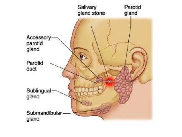 Management Of Parotitis