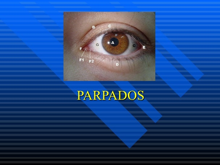 PARPADOS