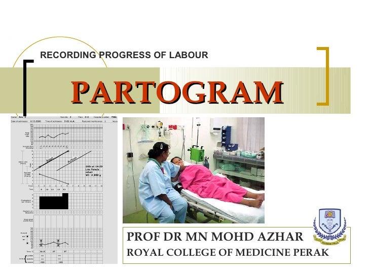 RECORDING PROGRESS OF LABOUR    PARTOGRAM              PROF DR MN MOHD AZHAR              ROYAL COLLEGE OF MEDICINE PERAK