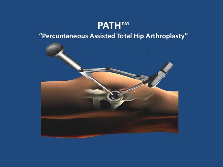 """PATH™<br />""""Percuntaneous Assisted Total Hip Arthroplasty""""<br />"""