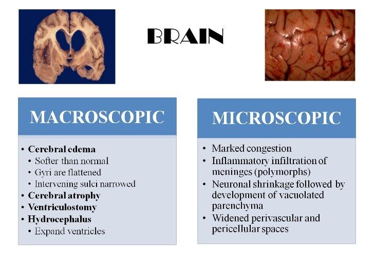 Pathological findings