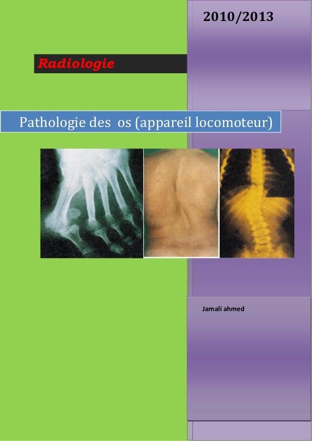 Radiologie 2010/2013 Jamali ahmed Pathologie des os (appareil locomoteur)