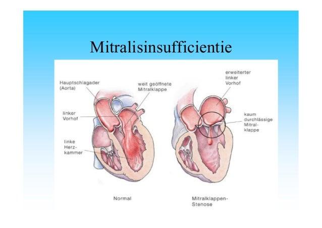 symptomen eierstokcysten