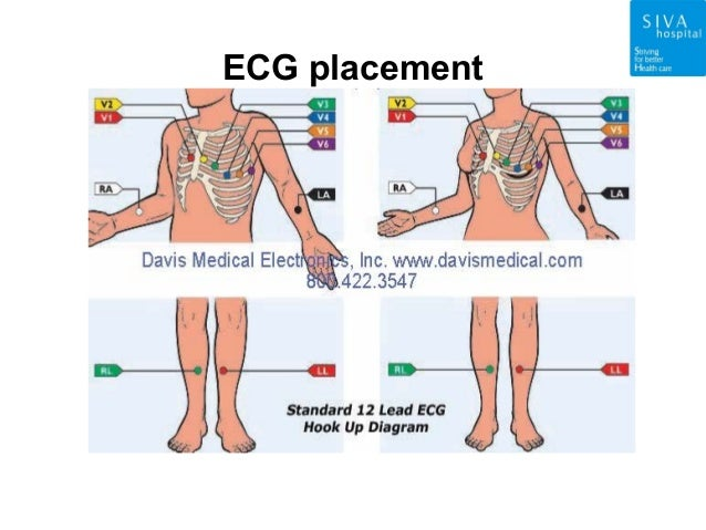 Patient Monitor Ppt Siva Hospital Nagarcoil on 10 20 eeg placement diagram