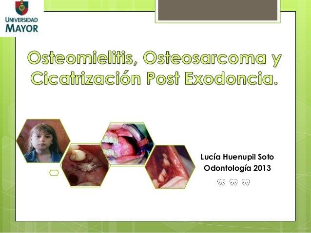 Osteomielitis, Osteosarcoma y Cicatrización Post- Exodoncia.