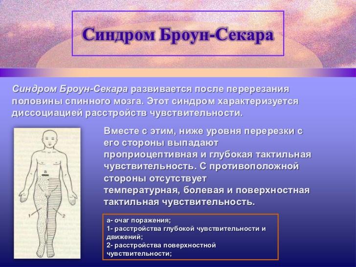 Синдром Броун-Секара фото