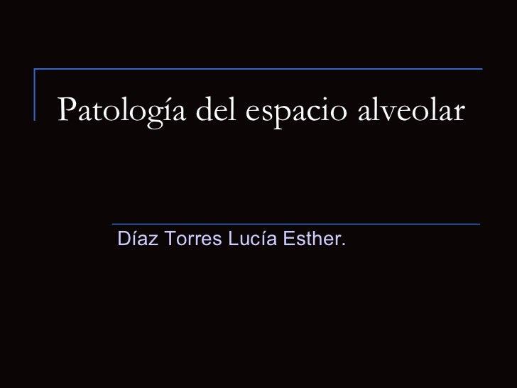 Patología del espacio alveolar Díaz Torres Lucía Esther.