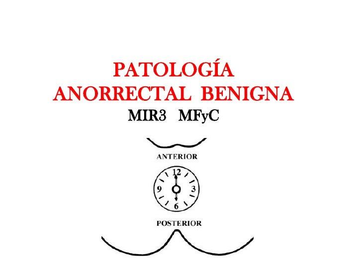 PATOLOGÍA ANORRECTAL BENIGNA      MIR3 MFyC