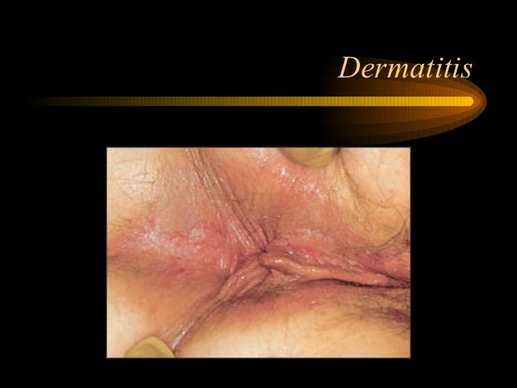 Perianal Streptococcal Dermatitis - American Family Physician