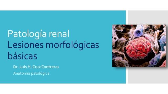 Patología renal- Lesiones morfológicas Básicas