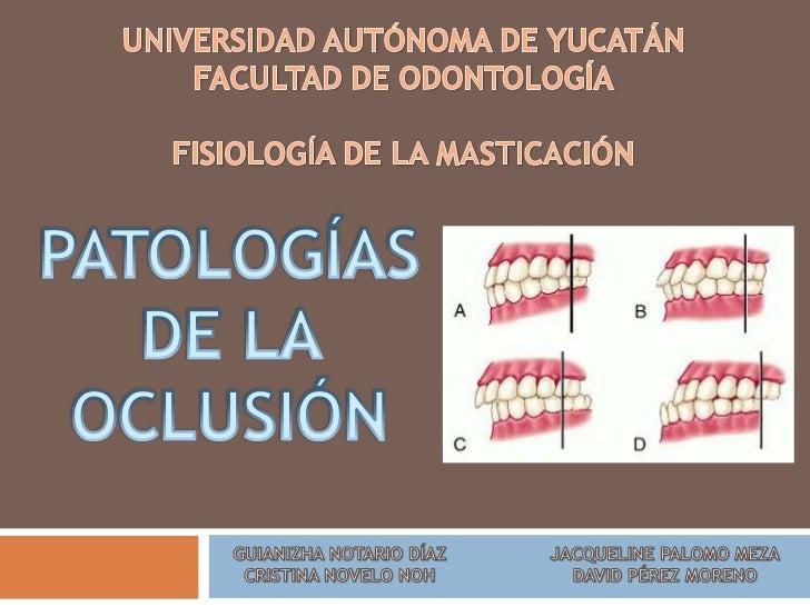 Patologías en la oclusión   Cuando existe bruxomanía, se afecta:     La ATM     La articulación oclusal o interdentaria...