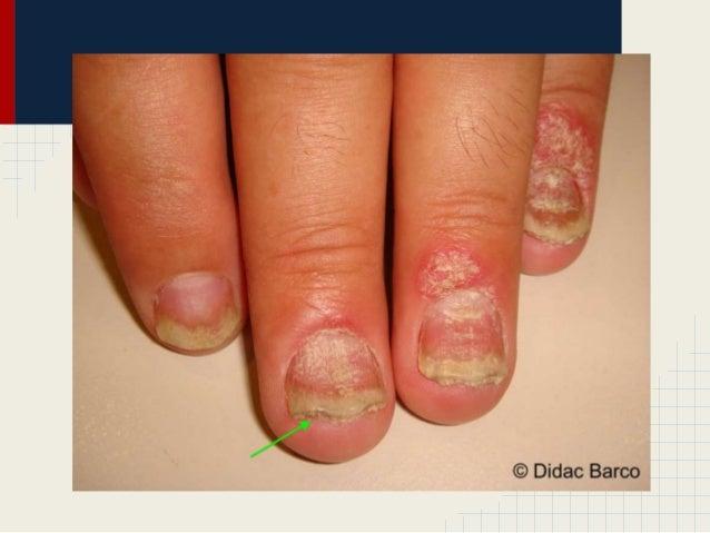 El hongo de la uña se ha hinchado el dedo