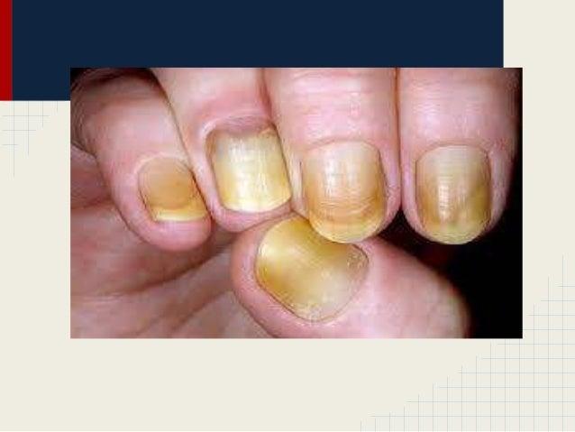 psoriasis ungueal tratamiento natural