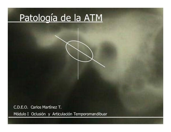 Patología de la ATM     C.D.E.O. Carlos Martínez T. Módulo I Oclusión y Articulación Temporomandibuar
