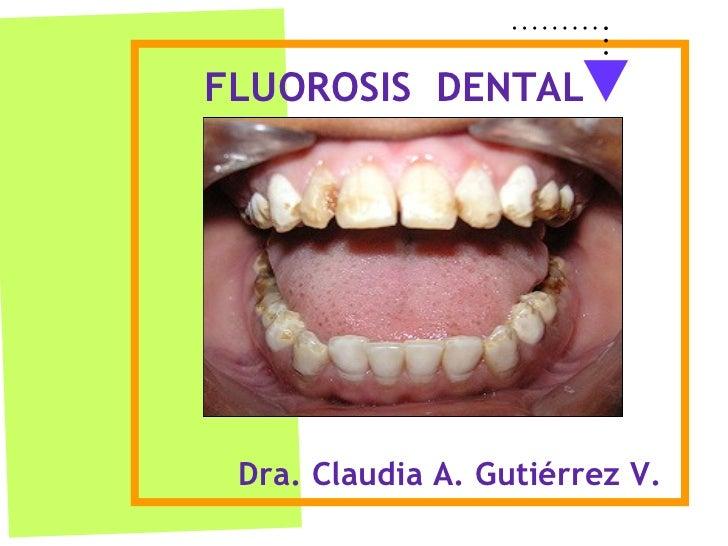 Dra. Claudia A. Gutiérrez V. FLUOROSIS  DENTAL