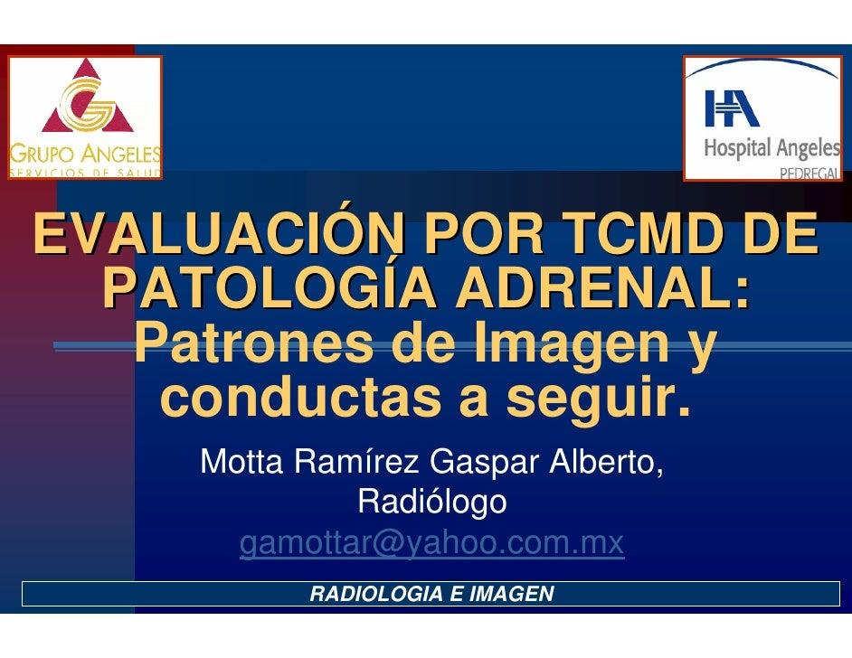 Patologia Adrenal por TCMD